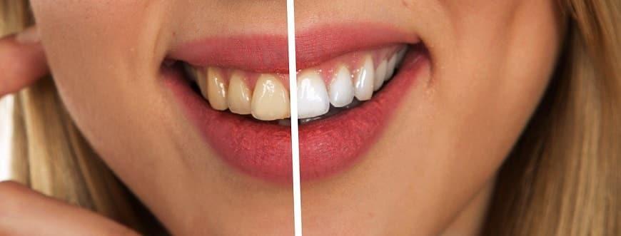 שיניים - לפני ואחרי טיפול הלבנה ושיפוץ